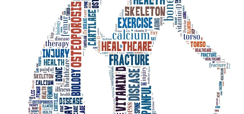 Home Care in Pacific Beach CA: Can You Prevent Osteoporosis?