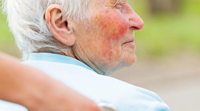 Elderly Care in Coronado CA: What Is Rosacea?