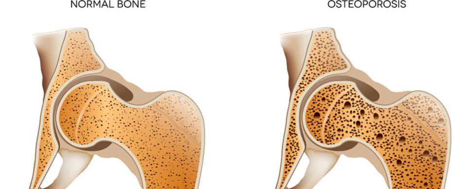 Caregiver in La Jolla CA: Osteoporosis Tips