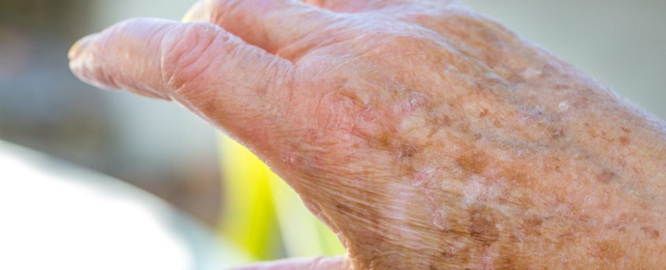 Home Care in San Diego CA: Senior Skin Health