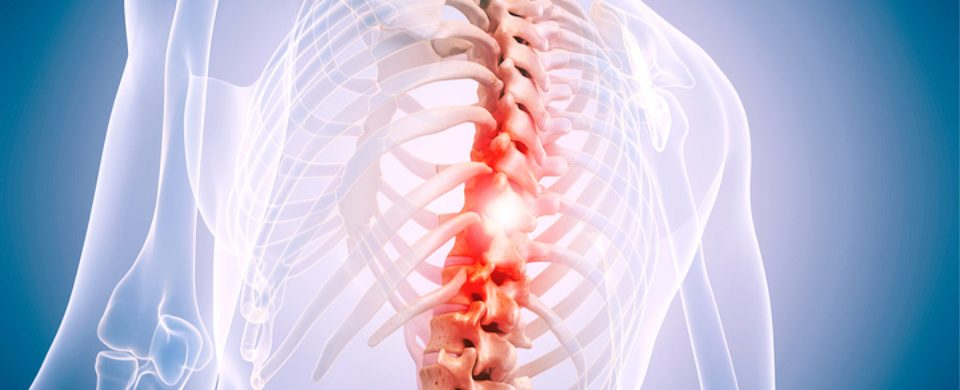 Home Care in San Diego CA: Spine Conditions